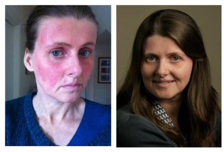 プロトピックはアトピーの顔の赤み 赤ら顔 の治療に効果があるので気に入っています。 アトピー性皮膚炎患者の随筆